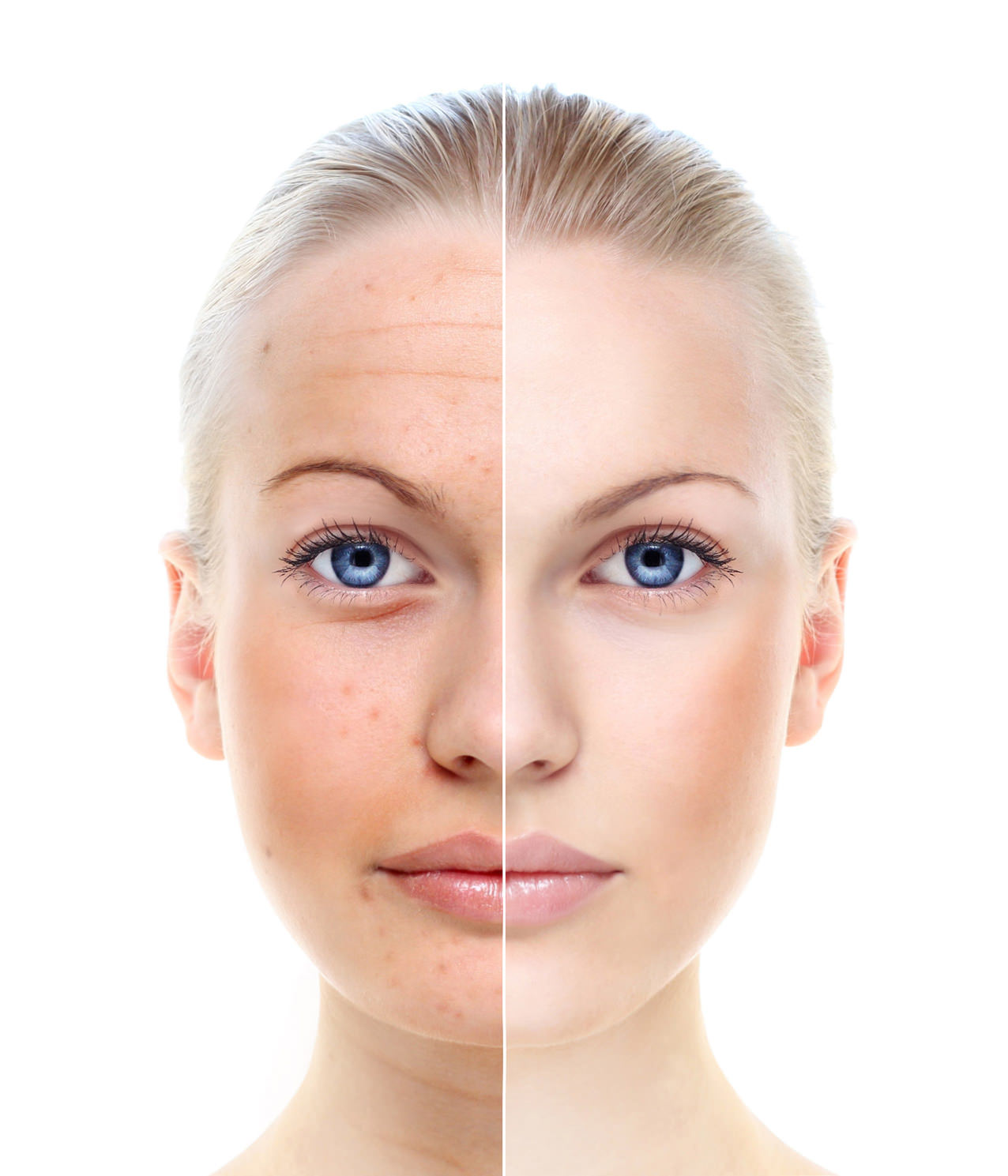 thesis against cosmetic surgery Reconstructing women's identities: the phenomenon of cosmetic surgery in the united this thesis is brought to you for free and.